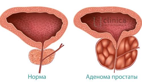 Операция тур аденомы простаты цена в москве