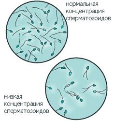 Мужское бесплодие отсутствуют сперматозоиды