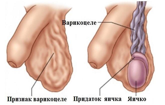 Лечение варикоцеле без операции лазером