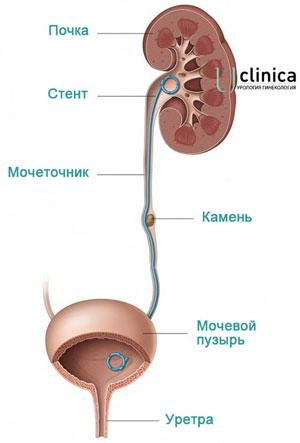Стентирование мочеточника - операция и цена в Москве
